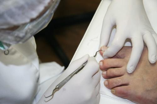 pedicure-leczniczy(10)